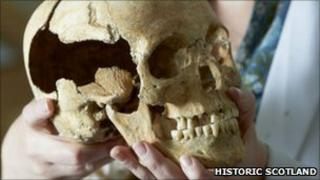 scientist holding skull found at Stirling Castle