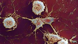 Multiple sclerosis cells