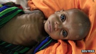 A severely malnourished Somali child at a refugee camp in Dadaab, Kenya - July 2011