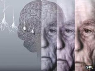 How dementia progresses with time