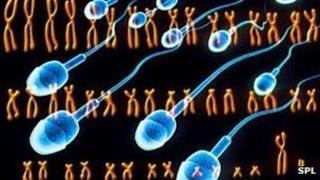 Chromosomes of a man