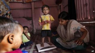 A volunteer weighs a malnourished child at the Apanalay center in Mumbai, India (Jan 11, 2012)