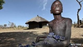 """Nancy Lamwaka, 12, who is suffering from nodding syndrome, sits out in the open in Lapul, Pader district, 300 km (186 miles) north of Uganda""""s capital of Kampala, February 8, 2012."""