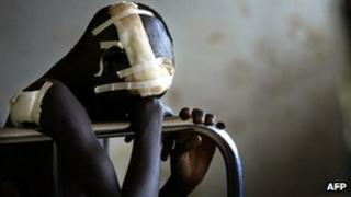 Victim of LRA in Uganda (file photo)