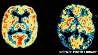 A PET scan of a regular brain (left) and one affected by Alzheimer's (right)