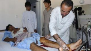 A doctor treats a wounded Afghan civilian in Khost where a suicide bomber killed at least 16 people on 20 June