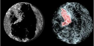 Comparison of normal CT and EST scans
