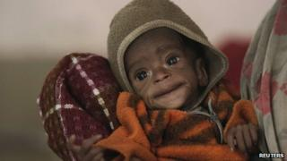 File picture of a four-year-old girl suffering from malnutrition in India