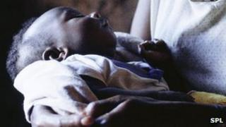 Baby with HIV