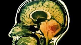 Brain tumour