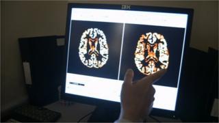 Ken's brain scan image