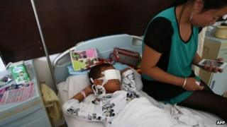 A boy lies on his hospital bed with his eyes covered with bandages as his mother sits next to him at a hospital in Taiyuan, northern China's Shanxi province on 27 August