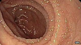 Inside the gut