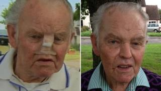 Cyril Osment without his nose (left) and with his new nose