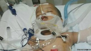 Musa Dayib in hospital