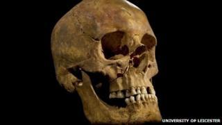 Richard's skull