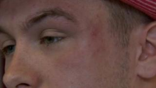 Lorny Roberts suffered bruising to his head and body during the attack