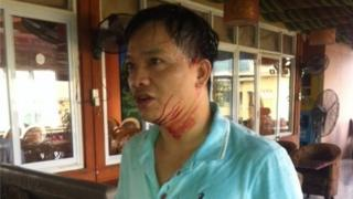 A man who has been attacked, and is bleeding