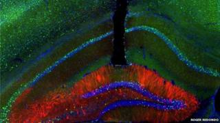 amygdala neurons