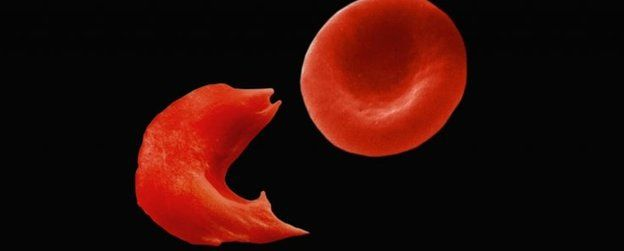 A normal red blood cell next to a sickle cell