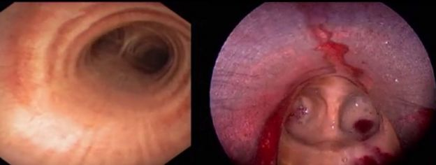 Bronchoscopy footage