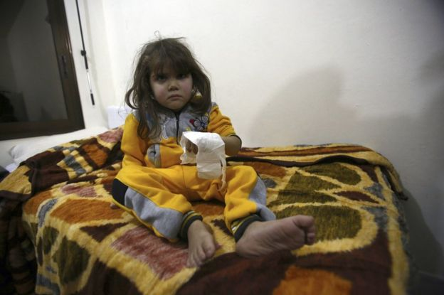 An injured girl from east Aleppo sits in a hospital bed near Idlib, 16 December