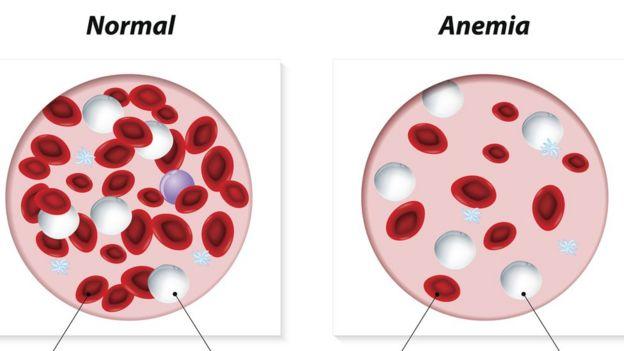 Dibujo de sangre sana y anémica