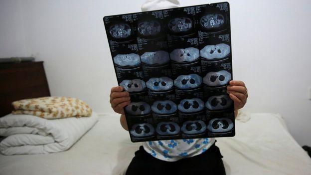 Mujer levanta sus placas radiográficas en las que se refleja su tumor. Ella está sentada en su cama.