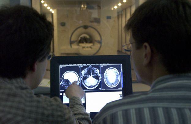 Investigadores miran resonancia magnética del cerebro