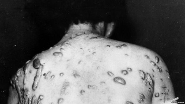 Yoshie Amaha, a patient at the Tokyo Imperial University Hospital, displaying injuries suffered as a result of the atomic bomb that was dropped on Hiroshima on the 6 August 1945.