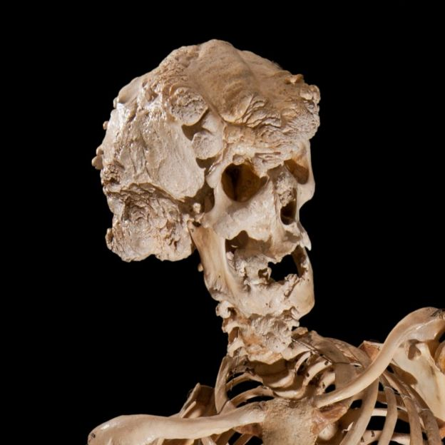 Joseph Merrick's skull
