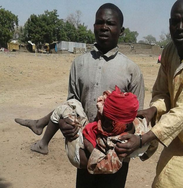 An injured child in the camp in Rann, Nigeria, 17 January