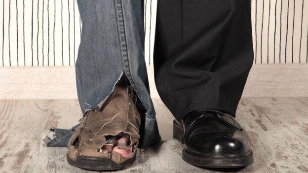 Foto de las piernas de un hombre, una con jeans y zapatos rotos, otra con vestido de ejecutivo.