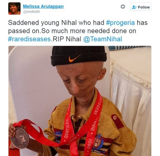 Saddened young Nihal who had #progeria has passed on.So much more needed done on #rarediseases.RIP Nihal @TeamNihal