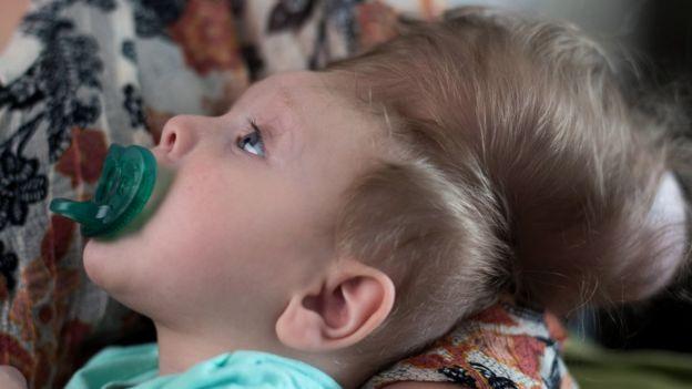 El futuro del pequeño es una incógnita, dicen los médicos.