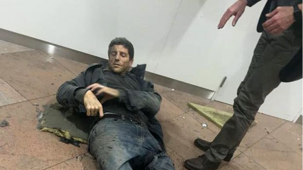 Bellin lying injured, 22 Mar (pic: Ketevan Kardava/Georgian Public Broadcaster via AP)