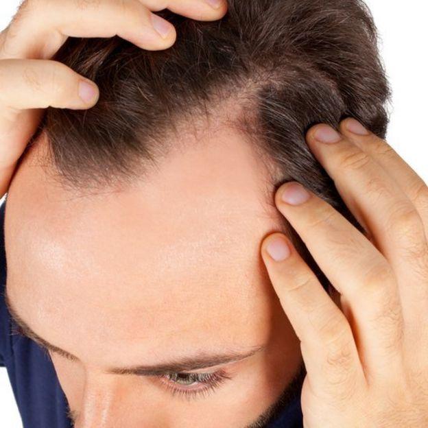 La levadura de cerveza de la caída de los cabello las revocaciones