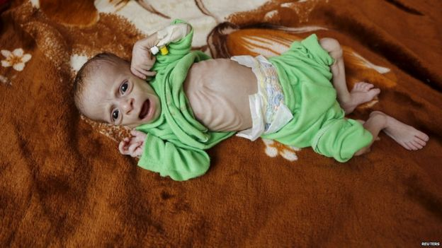 A malnourished child lies in a bed at a hospital in Yemen's capital, Sanaa (28 July 2015)