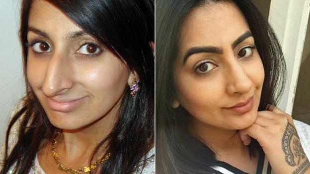 Sharon Dhaliwal, antes y después de la rinoplastia.
