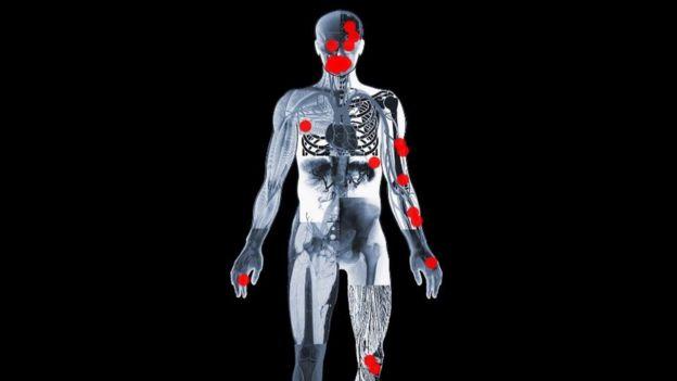 Graphic showing Sheku Bayoh's injuries