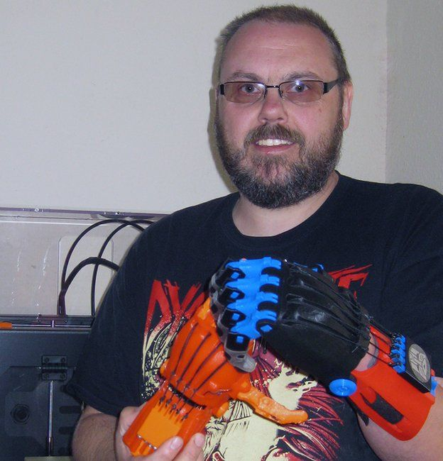 Stephen Davies with his 3d printed hand