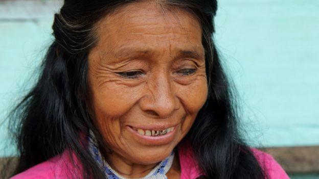 Irene Guasiruma lsofreu a mutilação quando era um bebê, mas disse que não repete a prática. (Foto: NATALIO COSOY/ BBC MUNDO)