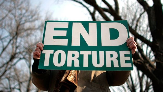 A man holds a sign which says 'end torture'
