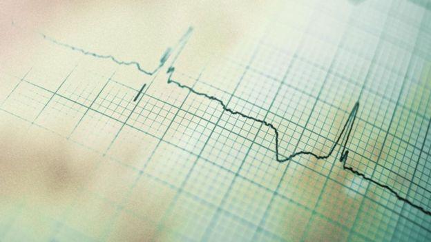 Un electrocardiograma