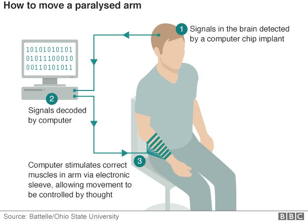 How to move a paralysed arm