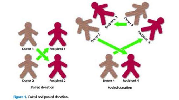 Gráfico sobre cómo funcionan las donaciones cruzadas, cortesía del servicio de salud pública británica, el NHS