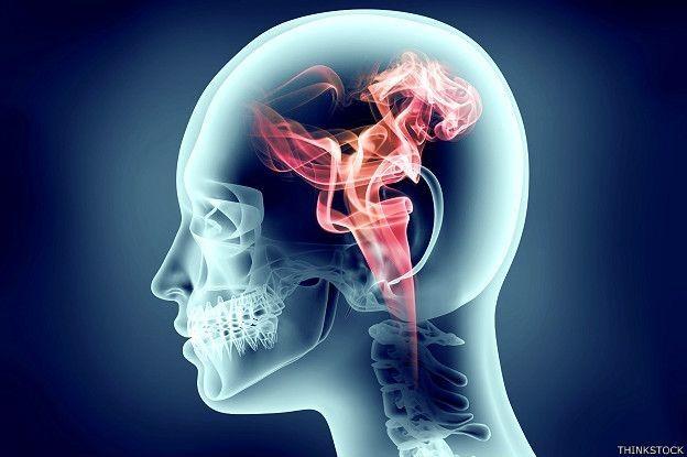 Imagem de cérebro