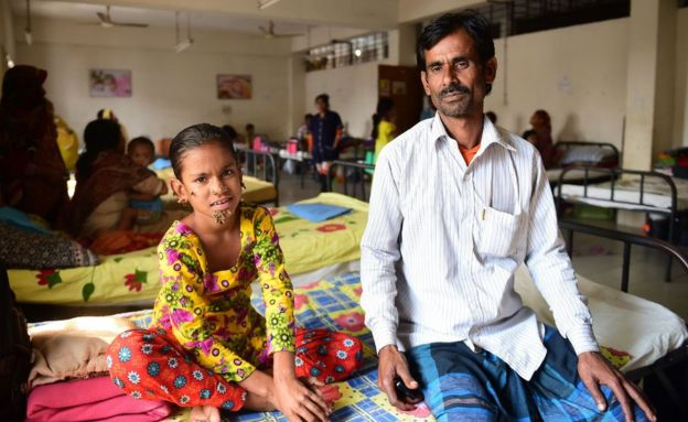 Bangladeshi patient Sahana Khatun, 10, and her father Mohammad Shahjahan pose for a photograph at the Dhaka Medical College and Hospital