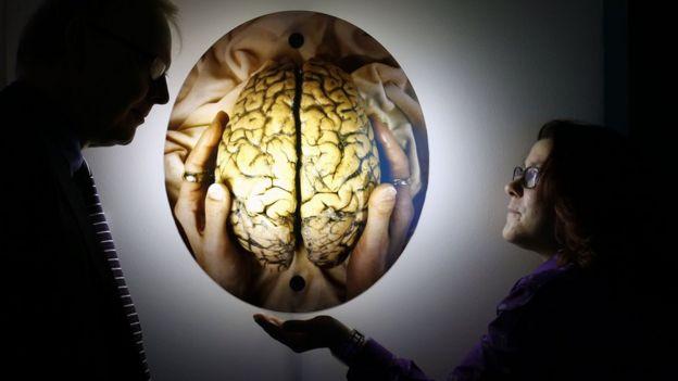 Escena en una exposición de arte frente a la imagen de un cerebro.