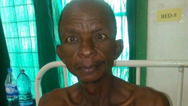 Rescued miner at hospital in Tanzania (17 November 2015)